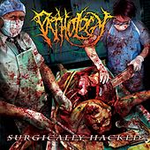Surgically Hacked by The Pathology