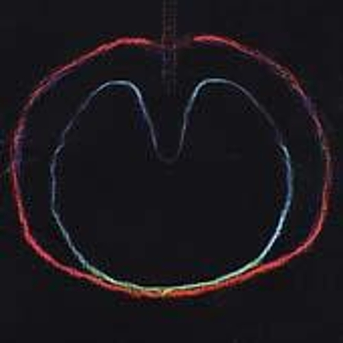 Wasp Star (Apple Venus Vol. 2) by XTC