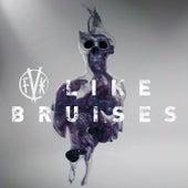 Like Bruises by Fearless Vampire Killers