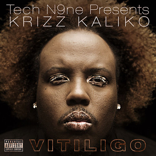 Vitiligo by Krizz Kaliko