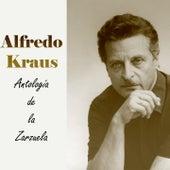 Antología de la Zarzuela by Alfredo Kraus