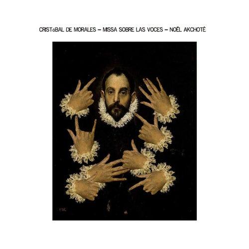 Cristóbal de Morales: Missa Sobre las Vocês (Renaissance Series, Arr. for Guitar) by Noel Akchoté