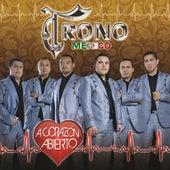 A Corazón Abierto by El Trono de Mexico